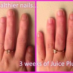 This is the secret to better skin, healthier hair and stronger nails.  ✨ If you want to see results in just a matter of weeks get in touch for more information. This could be the best thing you do so don't miss out.  #teamprincess