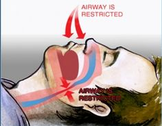If you are looking Snoring Aids in USA, then visit our site. Here you will know what causes Snoring In Men and Women exactly and how to Prevent Snoring. Visit http://www.americansnoring.com