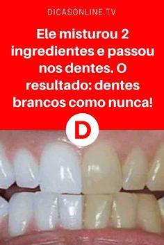 43 Melhores Imagens De Saude Bucal Oral Health Health E Health Tips