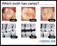 Which tooth has caries?.....