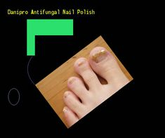 51 Best Antifungal Nail Polish Images Colorful Nails Black Nail