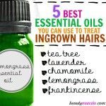 Top 5 Essential Oils for Ingrown Hairs The best way to treat ingrown hairs - use essential oils! Lemongrass essential oil is.The best way to treat ingrown hairs - use essential oils! Lemongrass essential oil is. Treat Ingrown Hair, Ingrown Leg Hair, Infected Ingrown Hair, Ingrown Hair Remedies, Ingrown Hair Removal, Diy Ingrown Hair Serum, Prevent Ingrown Hairs, Essential Oils For Hair, Face Masks