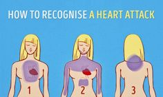 Some absolutely crucial advice: how torecognise aheart attack one month before ithappens