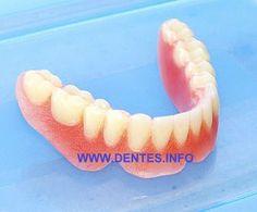 prótese dentária total inferior em acrílico