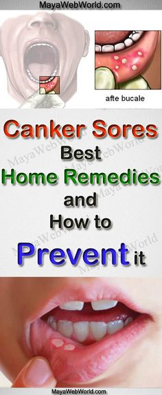 Canker Sores: Best Home Remedies and How to Prevent it – MayaWebWorld