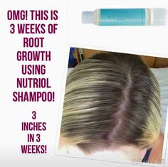 Fantastic hair growth results with our Nutriol shampoo! https://m.facebook.com/BeautySparkles123/