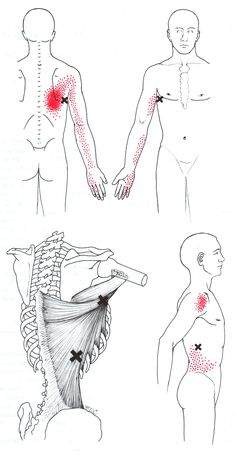 Latissimus Dorsi | The Trigger Point & Referred Pain Guide