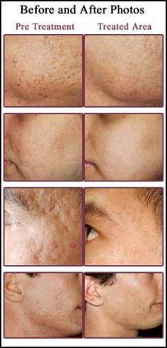 Get Rid of Skin Scars
