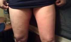 can you tell what leg she used defining gel on? defining gel tightens tones and firms and also gets rid of stretch marks and cellulite! only 45 dollars when you sign up to become a loyal customer! It works has amazing products! check them out at http://cieraswrappinyouskinny.myitworks.com