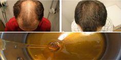 Une recette miracle contre la calvitie, en 2 jours les cheveux commencent à repousser