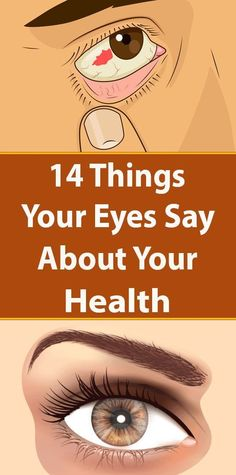 Health And Fitness, uncover practical plans to advance the well-being? Why not visit this pinned link number 7520817468 today. Common Eye Problems, Eyes Problems, Health And Fitness Tips, Health And Nutrition, Health Tips, Fitness Hacks, Yoga Fitness, Wellness Fitness, Migraine Aura