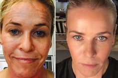 The face of Chelsea Handler transforms after ProFractional laser treatment Best Acne Treatment, Scar Treatment, Anti Aging Treatments, Skin Treatments, Chelsea Handler, Sagging Cheeks, Scar Remedies, Menopause, Beauty