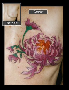 Mastectomy scar cover-up. Chrysanthemum cover-up. Breast Cancer Art, Breast Cancer Tattoos, Breast Cancer Survivor, Tattoos To Cover Scars, Scar Tattoo, Cover Tattoo, Scar Cover Up, Survivor Tattoo, Creative Tattoos