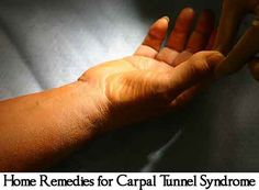 Carpal tunnel pain management carpal tunnel relief surgery,how do you get carpal tunnel moderate to severe carpal tunnel syndrome treatment,severe carpal tunnel signs of carpal tunnel in arm. Carpal Tunnel Relief, Carpal Tunnel Syndrome, Writing A Persuasive Essay, Health And Wellness, Health And Beauty, Hand Wrist, Healing Herbs, Pain Management, Natural Home Remedies