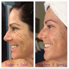 Check out these amazing results using Rodan Fields Redefine Regimen for only 3 weeks! Let me know when youre ready to get started down the path to younger looking skin! Rodan And Fields Redefine, Redefine Regimen, Rodan Fields Skin Care, My Rodan And Fields, Rodan And Fields Business, Love Your Skin, Good Skin, Cellulite, Roden And Fields