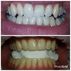 I BEEN DOIN TEETH WHITENING SINCE AUGUST 2012 UNFORTUNATELY I'M STOPPING MAY 29TH 2016 I WILL BE STAYING IN THE BEAUTY INDUSTRY BOOK IN BEFORE TO LATE CRYSTAL LAZORTEETH TEETH WHITENING TWO PEOPLE FOR SIXTY OR ONE PERSON FOR FORTY PLUS TRAVEL OUTER WIRRAL AS I'M MOBILE DO TRAVEL TO #LIVERPOOL $#wirral #Chester #manchester #birkenhead #warrington #wigan #BLACKPOOL #teethwhitening #FITNESS #beauty #MOBILE #onetreatment #SMILES Thankerton sharon xxx by sharon200910 Our Teeth Whitening Page…
