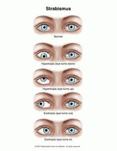 The medical term for misaligned eyes is strabismus.