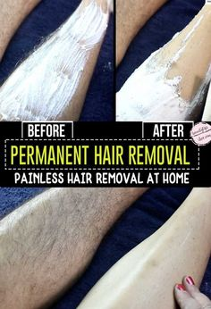 Hair Removal At Home! Permanent Hair Removal At Home!Permanent Hair Removal At Home! Hair Removal Diy, At Home Hair Removal, Homemade Hair Removal, Hair Removal Scrub, Best Hair Removal Products, Sugaring Hair Removal, Face Hair Removal, Underarm Hair Removal, Hair Removal Cream