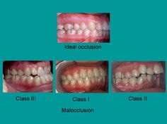 classes of occlusion