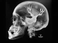Soooo we have the results of the CT scan..... It's confirmed-- he has Buck Fever!