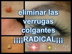 diclofenac indications
