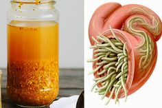 Watch This Video Captivating Clear Blocked Arteries with Natural Health Remedies Ideas. Splendid Clear Blocked Arteries with Natural Health Remedies Ideas. Organic Garlic, Organic Turmeric, Turmeric Root, Water Retention Remedies, Bacterial Diseases, Organic Apple Cider Vinegar, Detoxify Your Body, Natural Antibiotics, Natural Health Remedies