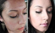 Microdermoabrasione fai da te contro acne, rughe e macchie sulla pelle