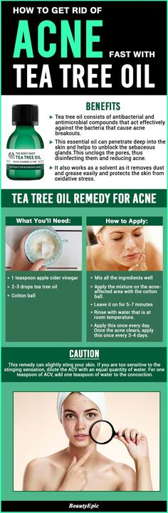 How to Get Rid of Acne Fast with Tea Tree Oil