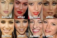 celeb nose jobs! SEEEE all the $$$ they spend on themselves! Don't ... Chin Implant, Christina Model, Diy Lip Gloss, Celebrity Plastic Surgery, Korean Face, Operation, Cosmetic Procedures, Tummy Tucks, Liposuction