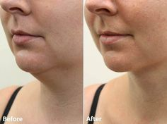 https://flic.kr/p/usxam3 | Dr Darm LipoLift Neck Before and Afters JA (2)