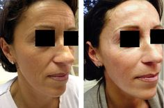 #Botox #Toxin – Ideal Way to Smooth Wrinkles
