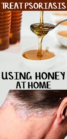 Is Honey Good for Psoriasis?  There have had been multiple studies and surveys that prove the beneficial use of honey to reduce psoriasis with positive results. It cannot be completely treated since the actual reason behind it is still unknown. Honey, however, can help you to get rid of common symptoms of Psoriasis