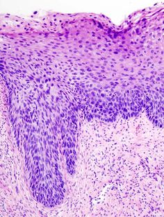 Cervical intraepithelial neoplasia (4) CIN3 - Cervical intraepithelial neoplasia - Wikipedia, the free encyclopedia