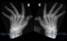 Catastrophic Rheumatoid Arthritis