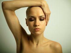 Kadınlarda Saç Dökülmesi Hakkında