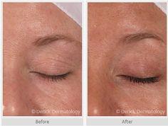 #Latisse | Latisse Product | Long EyeLashes | Long Eye Lashes