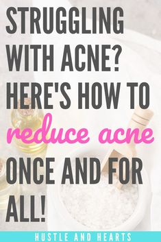 If you struggle with acne, I know how you feel. As someone who suffered from sev., If you struggle with acne, I know how you feel. As someone who suffered from severe acne for multiple years, I& tried every acne remedy in the b. Natural Acne Treatment, Natural Acne Remedies, Skin Treatments, Flare, Pimples Remedies, Clear Skin Tips, How To Get Rid Of Acne, Healthy Skin Care, Skin Care