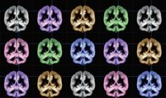 Researchers find the neurobiological root of happiness in the precuneus.