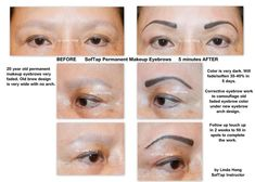 SofTap permanent makeup eyebrows and corrective camouflage by Linda Hong, SofTap Instructor. Source by skincareexpert Permanent Makeup Eyebrows, Eyebrow Makeup, Eyeliner, Purple Makeup, Makeup Services, Glamorous Makeup, Layers Of Skin, Microblading Eyebrows, Tattoo Removal