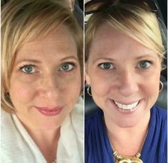 "This is Talena....check out her AMAZING results after two months of using the Rodan + Fields Reverse Accelerator pack. She says ""I was tired of all of my freckles that we're starting to clump together and form larger dark spots on my face. AND look how well the eye cream works when it's used consistently. I am proof that these products work!""  Message me today and let's get you on the road to great skin! Tneitz.myrandf.com"