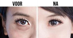 An Awesome Japanese Technique to Make Your Eyes Look Younger.- An Awesome Japanese Technique to Make Your Eyes Look Younger — It Only Needs A Minute An Awesome Japanese Technique to Make Your Eyes Look Younger — It Only Needs A Minute - Beauty Care, Beauty Hacks, Hair Beauty, Beauty Tips, Beauty Skin, Beauty Products, Beauty Ideas, Beauty Secrets, Massage Dos