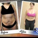 """Many women are choosing to go under the knife for full Mommy Makeovers. Enhancing your body image with a """"Mommy Makeover"""" along with other combination body contouring surgery procedures can provide the necessary boost individuals may need who are frustrated when diet & exercise don't meet their desired expectations. In our latest blog post we are pleased to have Shellie share her experience with her Mommy Makeover by Dr. Franklin Rose! Review her story, see the photos & watch the video:"""