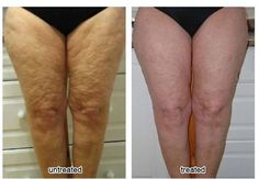 Before & After results from pre-launch use of the new Body Spa launched May 2012, get your order in now!
