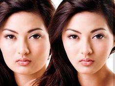 Thẩm mỹ khuôn mặt V-Line 3D: xu hướng làm đẹp hot nhất 2014