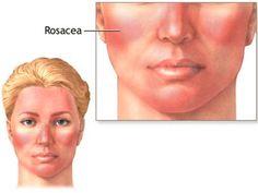 La rosácea es una enfermedad crónica de la piel frecuente que afecta fundamentalmente a la cara. La mayoría de las personas con rosácea son de raza cauc....