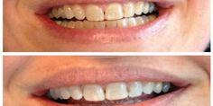Tot late leeftijd hagelwitte tanden? Het is mogelijk met deze eeuwenoude Tibetaanse techniek!