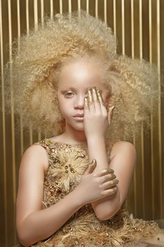 "🥰💕👼🚨Albinism is Beauty from Black Women. Whiteys say it's from inbreeding and I say: ""Down syndrome"" is from inbreeding as they are a drain on the health system and Albinos are very much independent and mentally superior 🥰💕👼🚨 Modelo Albino, Pretty People, Beautiful People, Style Afro, Vitiligo Treatment, Pelo Natural, My Black Is Beautiful, Beautiful Eyes, Tips Belleza"