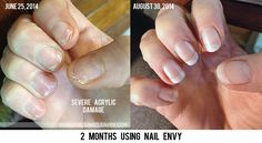 Does Nail Envy Really Work?  Before & After photos!!