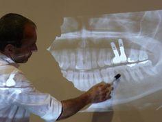 Descodificación dental: los dientes hablan de sufrimientos inconscientes - Buenasterapias