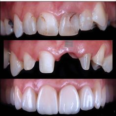 🇬🇧Existing restorations were replaced with IPS e. Intracuronal … 🇬🇧Existing restorations were replaced with IPS e. Intracuronal bleaching was made for devital teeth and fiber post was placed on… Dental Implant Procedure, Implant Dentistry, Teeth Implants, Dental Implants, Dental Hygienist, Dental Sedation, Dental Images, Teeth Whitening That Works, Dental Photography